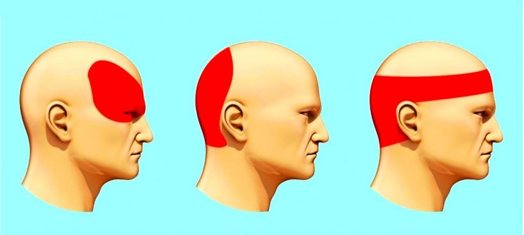 болит голова сзади уха