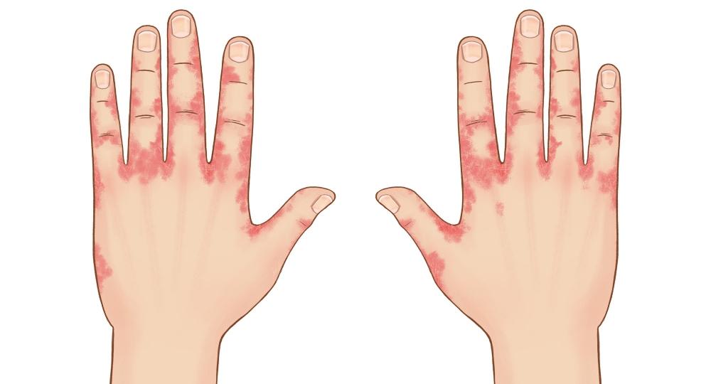 сыпь пузырьки на пальцах рук