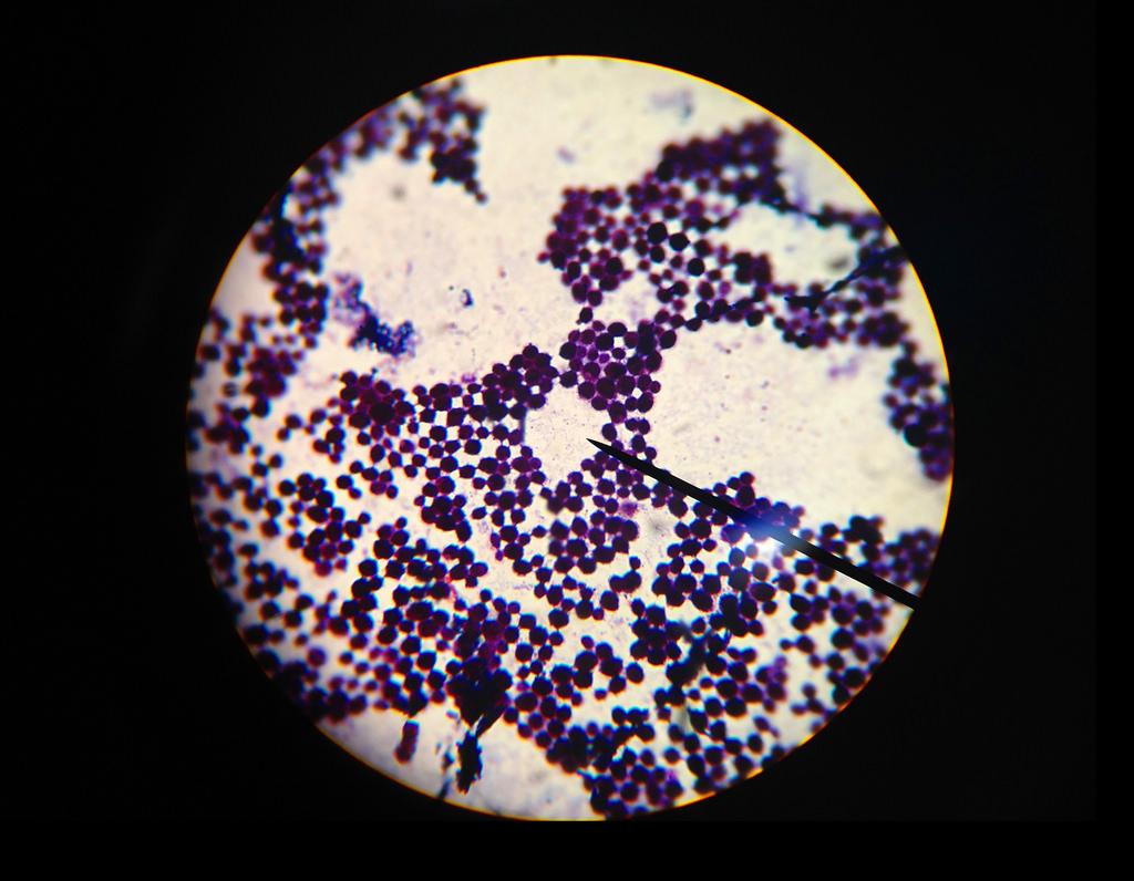 бактериологический анализ кала на патогенную кишечную группу