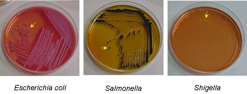 бактериологический анализ кала на дисбактериоз