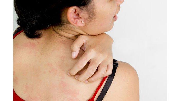 аллергия у взрослых