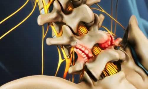 Появление остеофитов