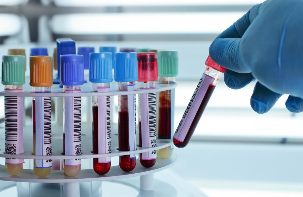 Пробирки с кровью на центрифуге