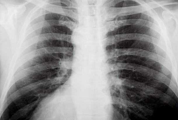 Рентгенография грудной клетки