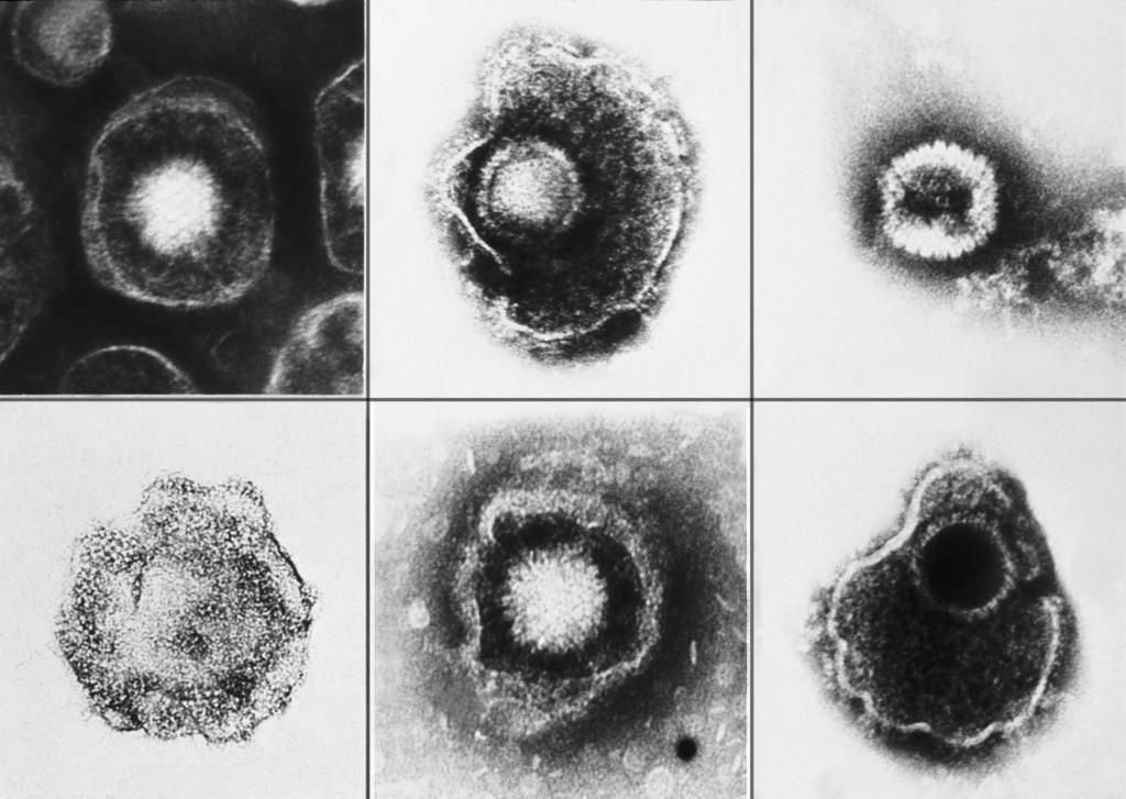 Вирус Эпштейн-Барр при увеличении