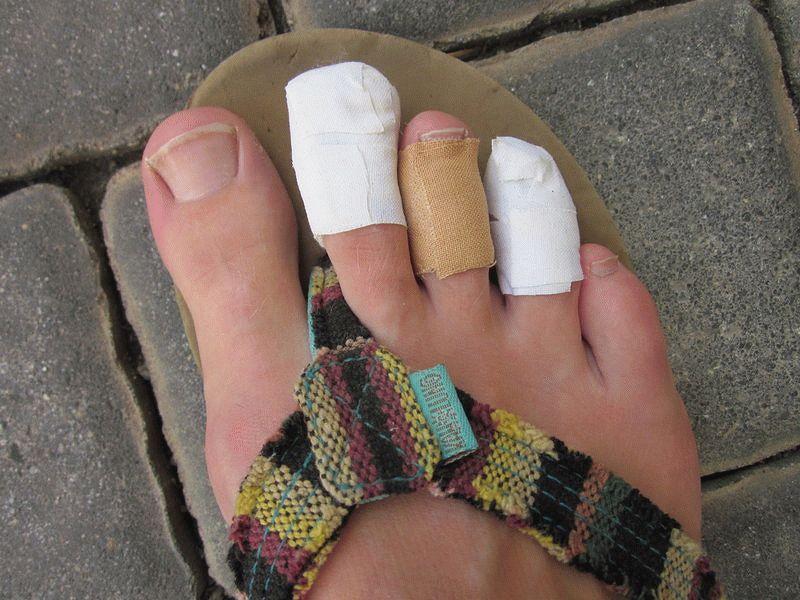 Забинтованные пальцы ног