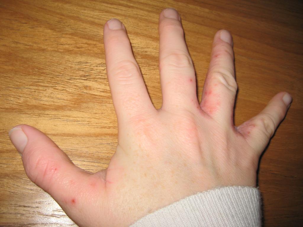 сухая кожа между пальцами рук