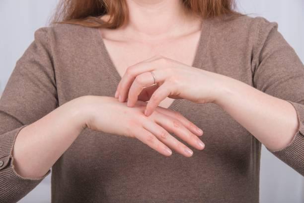 Белая и сухая кожа между пальцами на руках thumbnail