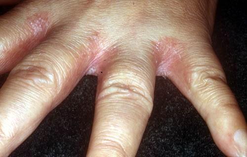 между пальцами рук шелушится кожа сильно