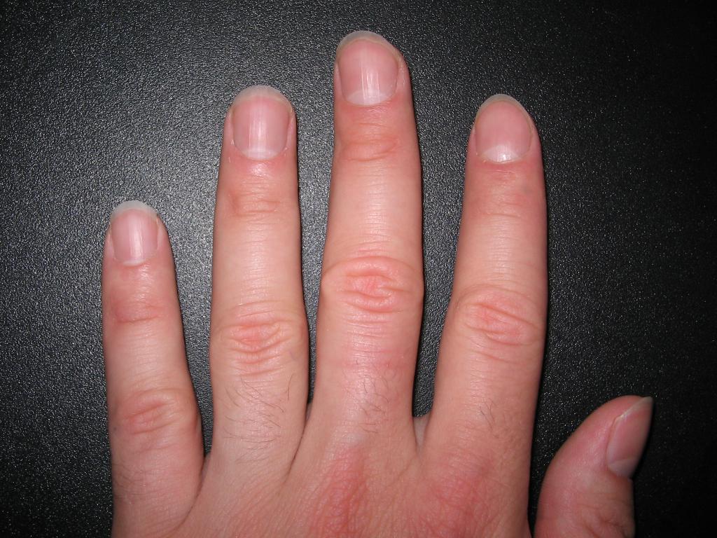 посинел палец на руке причина