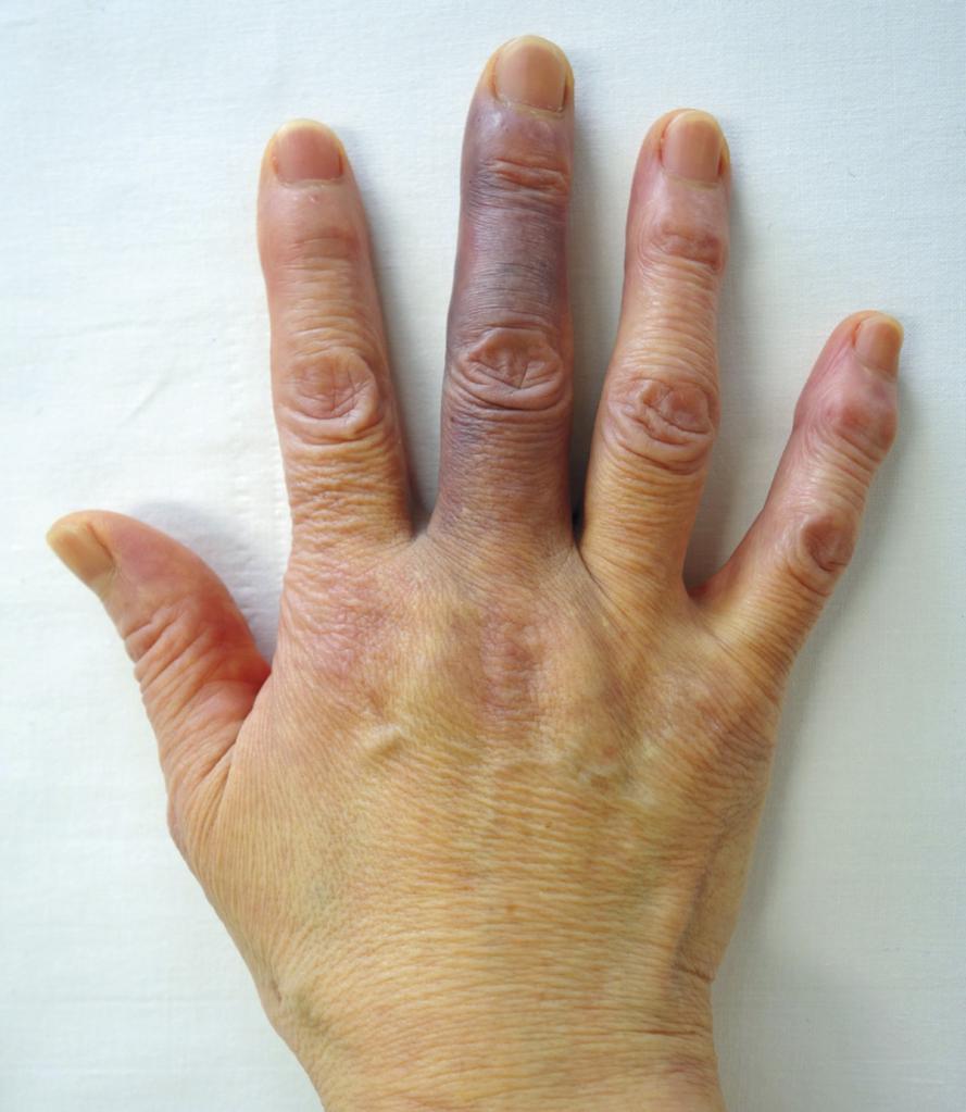 посинели пальцы на руках что делать