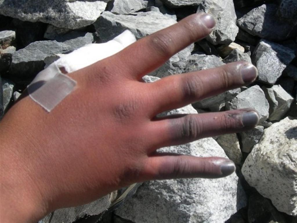 посинел большой палец руки