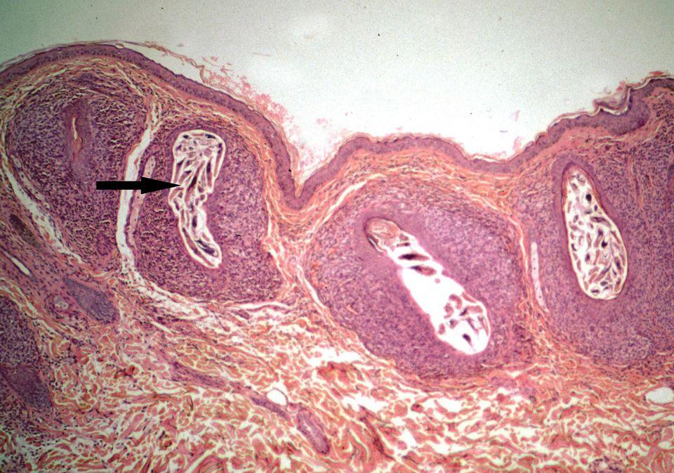 соскоб кожи на демодекс