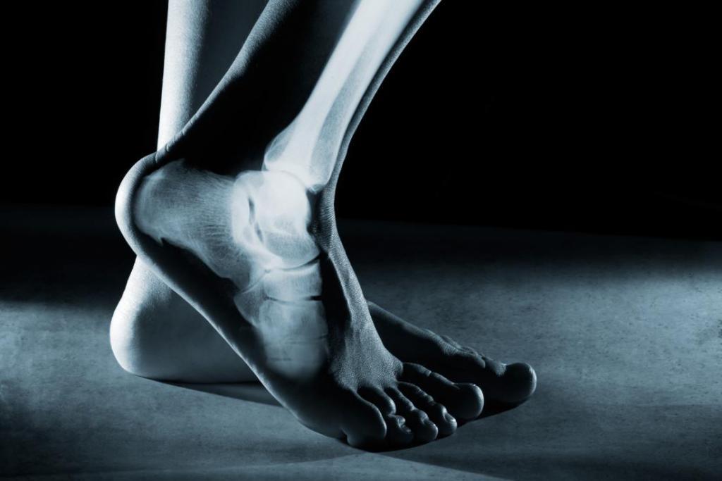 болит кость на ноге причины