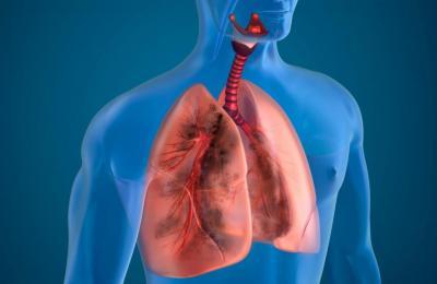 бронхиальный кашель