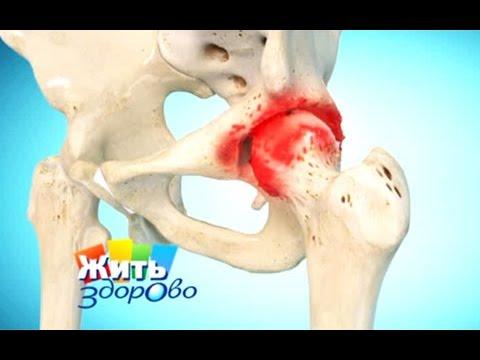 При простуде болят тазовые кости