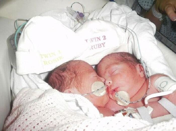 В 2012 году женщина родила сиамских близнецов, которых сразу же было решено разделить. Как они выглядят через 7 лет
