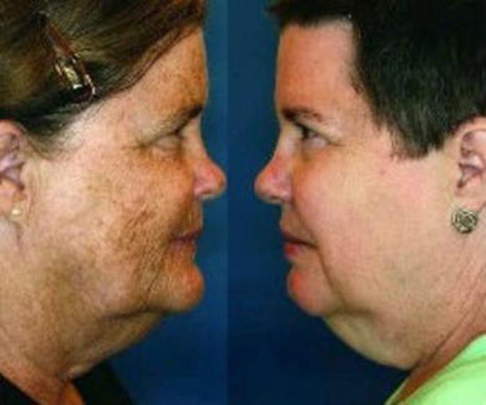 месяц выровнялась фото близнецов один из которых курит может стать