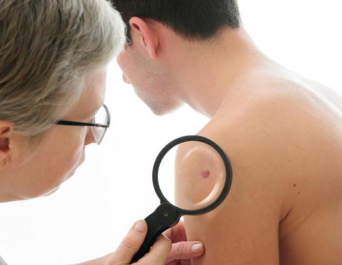 симптомы рака шеи