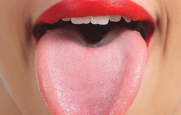 запах изо рта белые комочки чем лечить