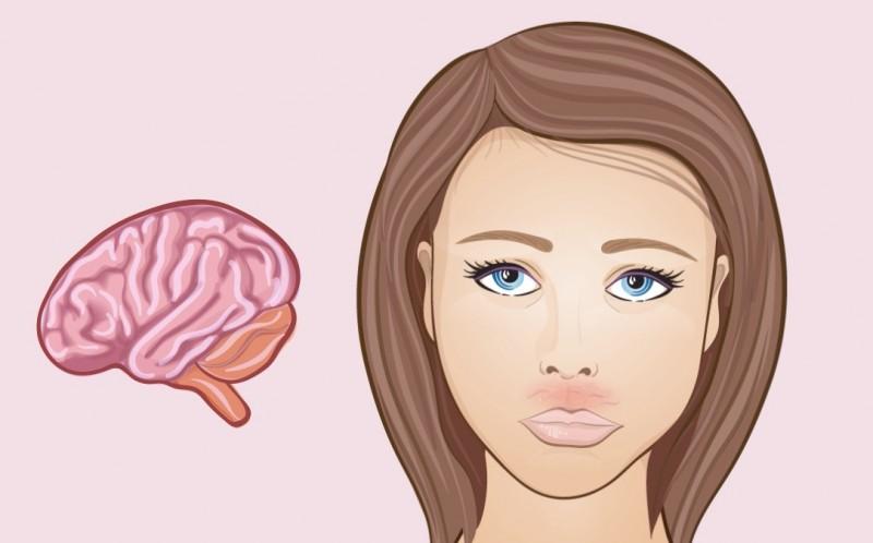 """Когда все """"на лбу написано"""": проблемы со здоровьем, о которых может рассказать ваше лицо"""