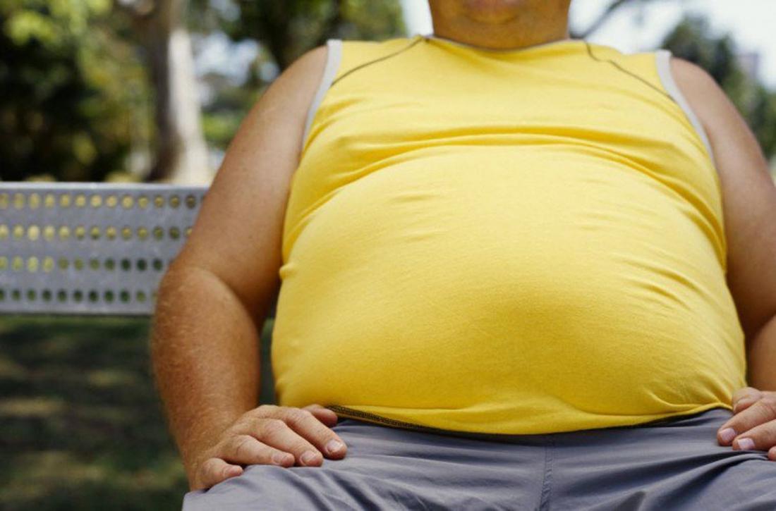 obesity imagine