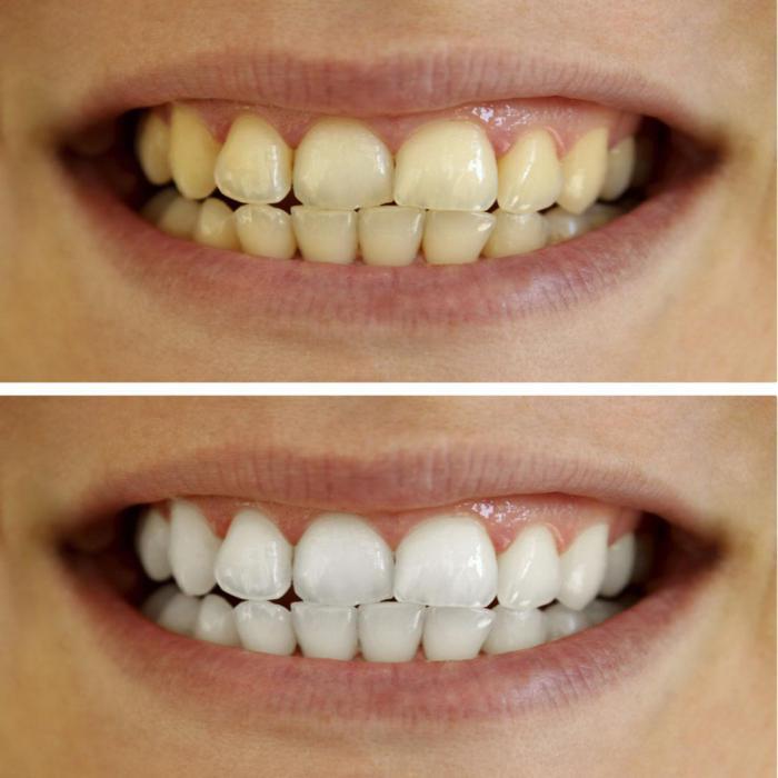 Отбеливание зубов казань цены отзывы