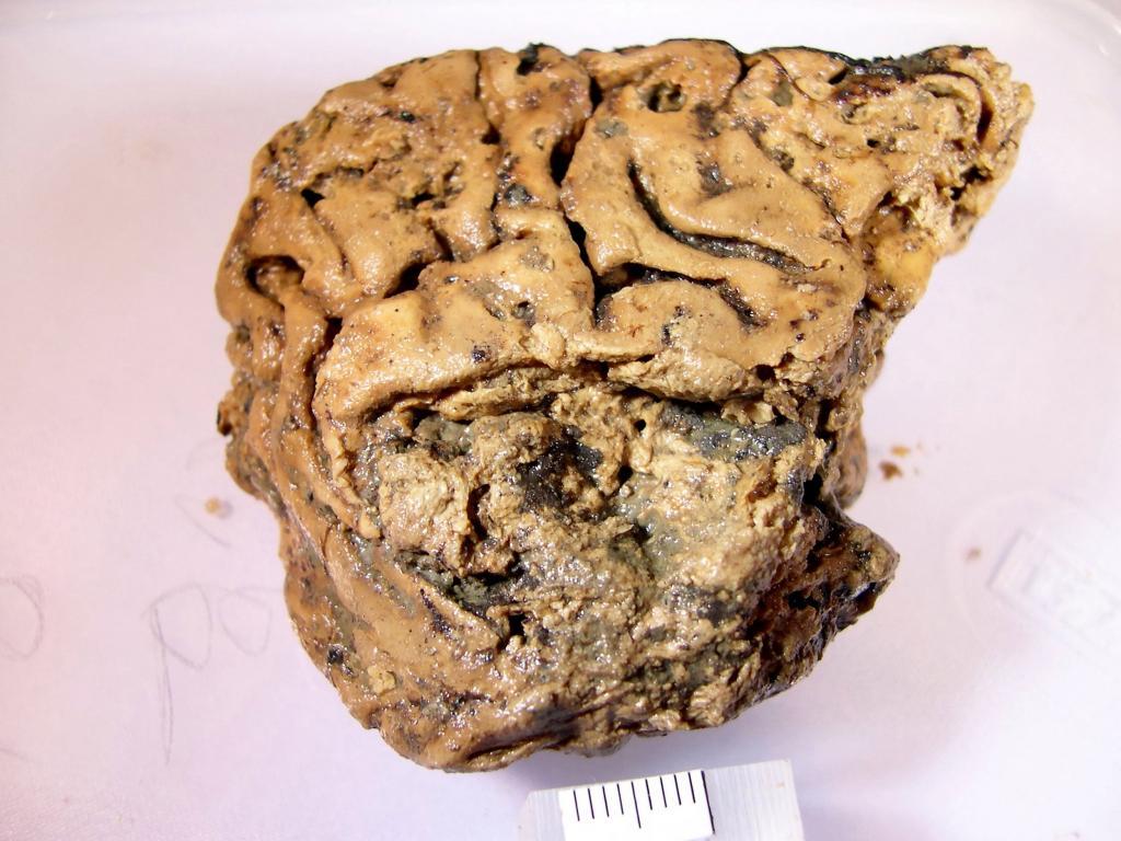 Секреты хорошо сохранившегося 2600-летнего человеческого мозга: исследование