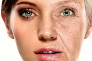 Фурункул в паху у женщин лечение
