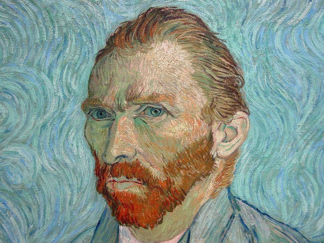 the suffering of vincent van gogh with bipolar ii with rapid cycling features Bipolar essay bipolar disorder bipolar disorder has five classifications, including: bipolar i, bipolar ii, rapid cycling, mixed bipolar vincent van gogh.