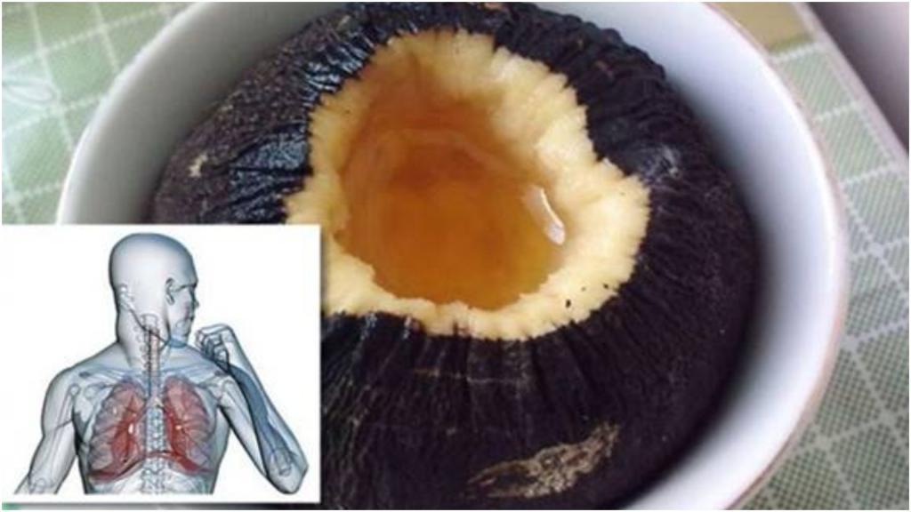 Запасаемся грушами, редькой, бананами и луком: простые рецепты органической самопомощи от кашля и простуды