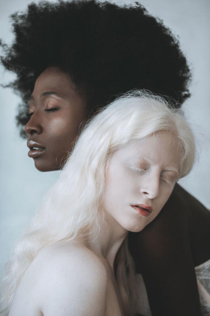Серия снимков девушки-альбиноса и темнокожей модели: как Луна и Солнце
