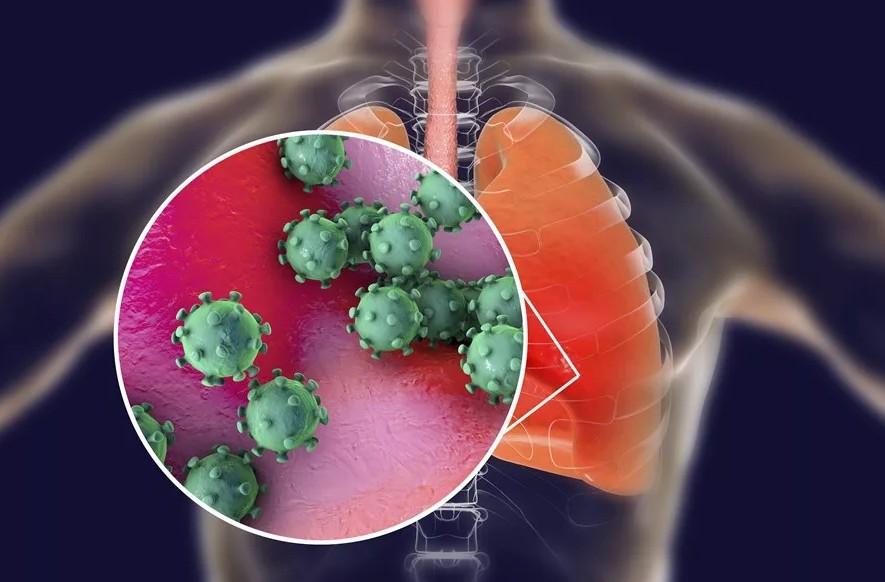Ученые озадачены последствиями коронавируса, сравнимыми с полиомиелитом: аритмия