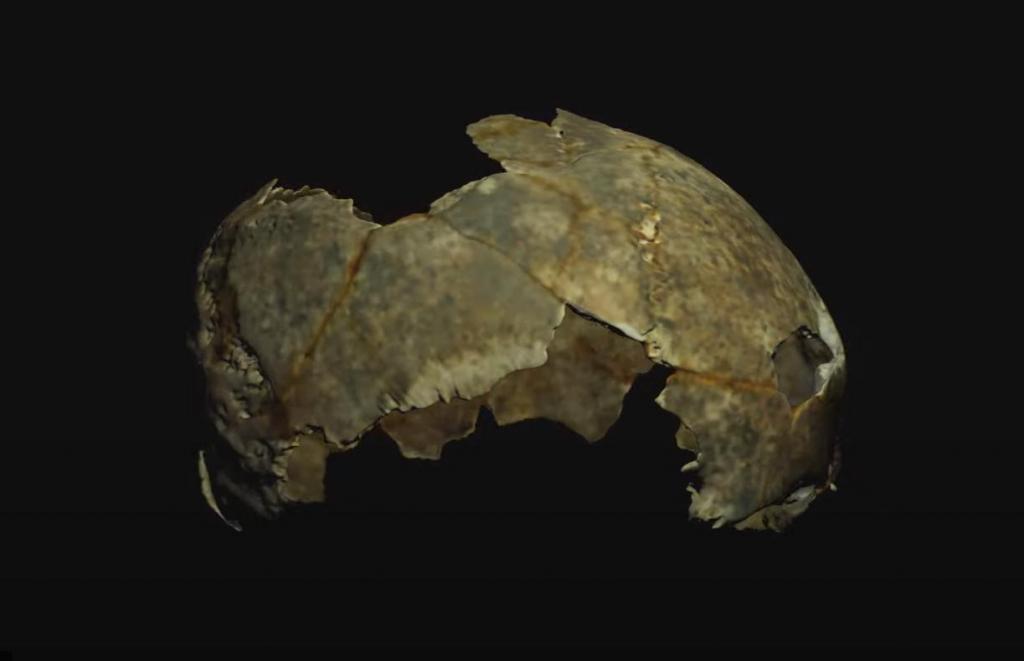 Древний череп, найденный в Крыму, впечатлил ученых следами прижизненной трепанации