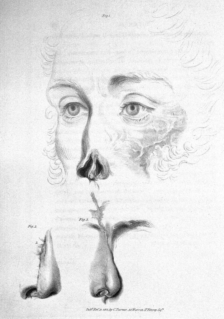 «Бог мой, да это же нос!»: 206 лет назад в Лондоне была проведена первая в Европе пластическая операция
