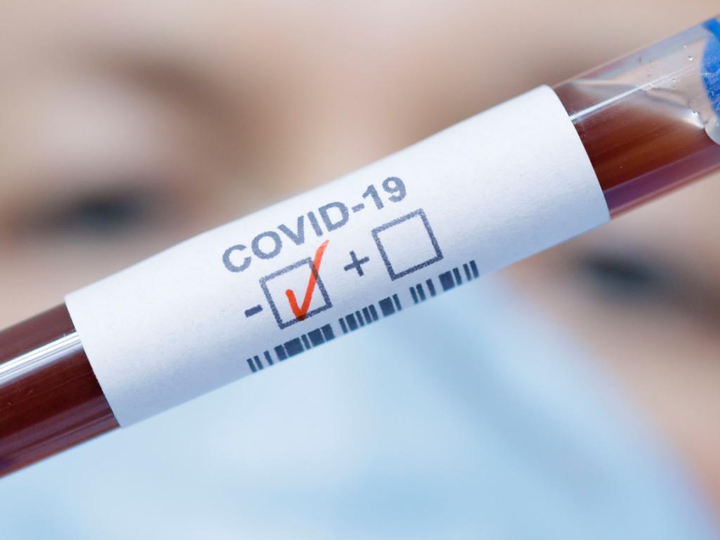 Клетки памяти защищают от COVID-19 восемь месяцев, даже если антитела больше не обнаруживаются