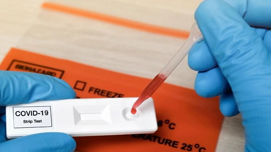 Генетики пришли к выводу, что люди африканского и азиатского происхождения подвергаются значительно большему риску заражения COVID-19