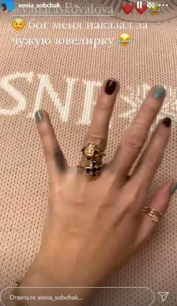 Бог наказал: Ксения Собчак показала фанатам свои почерневшие пальцы на руке