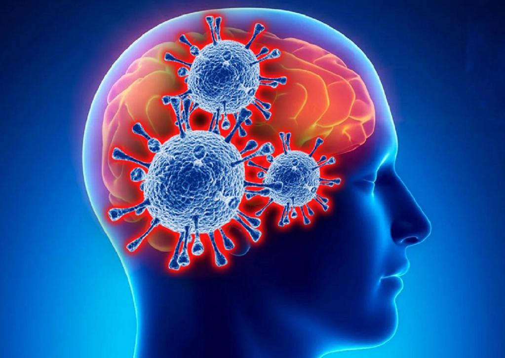 Ученые: COVID-19 может навсегда оставаться в головном мозге человека
