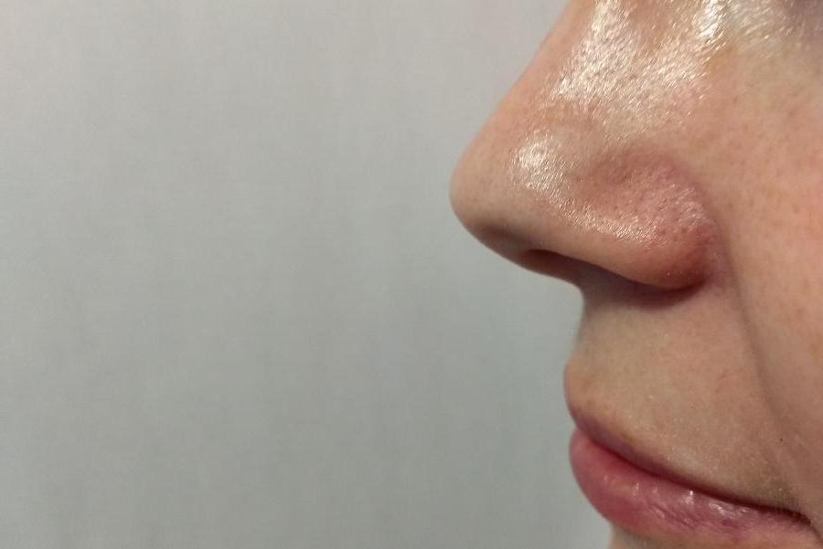 """Российские ученые представили уникальную систему распознавания запахов. В перспективе этот """"электронный нос"""" может помочь в диагностике болезней"""