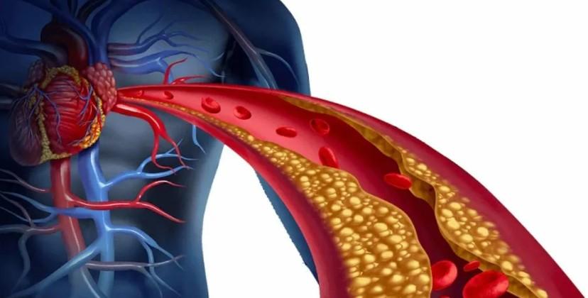 Употребление всего 2 сосисок в неделю увеличивает риск сердечных заболеваний