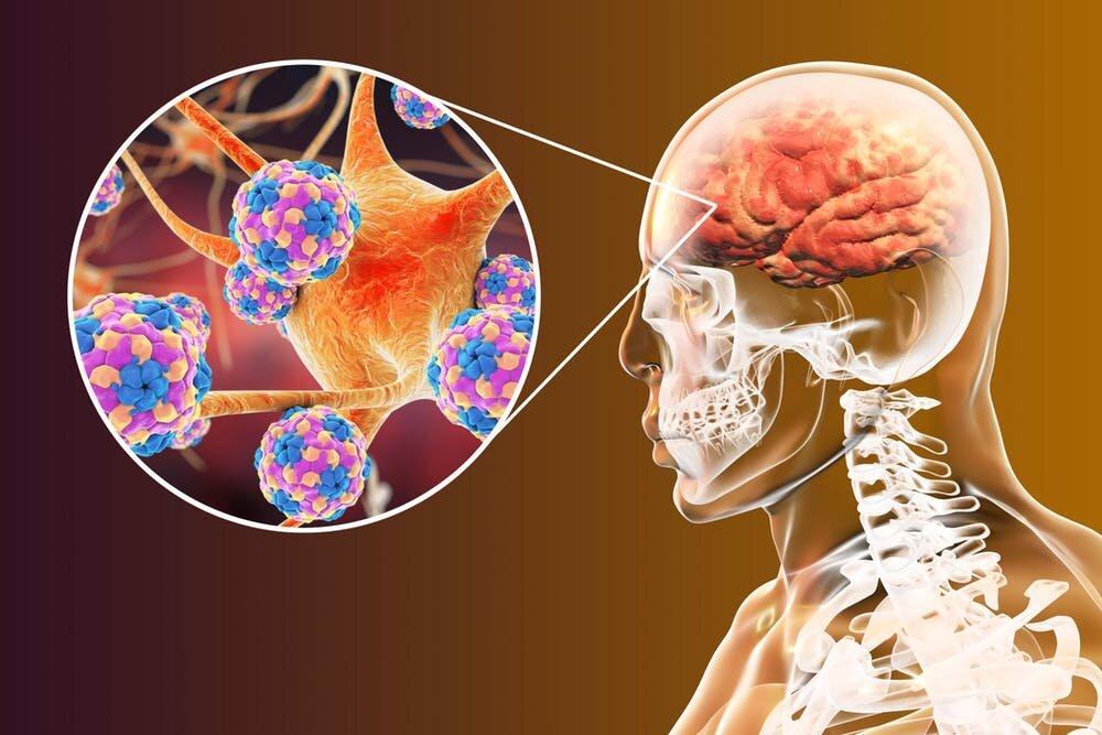Ученые из Австрии выяснили, как некоторые вирусы влияют на развитие мозга и когнитивных функций