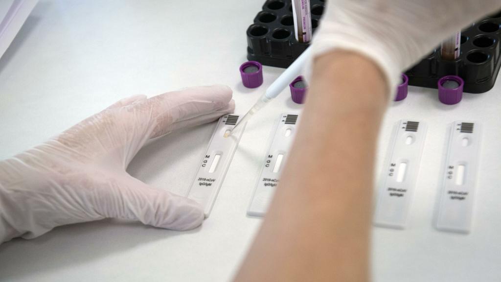 Гендиректор центра «Вектор» сообщил о разработке экспресс-теста, благодаря которому можно выявить антитела к коронавирусу у привившихся от COVID-19