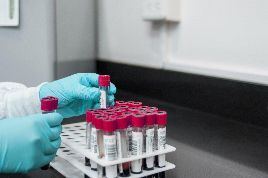 Роспотребнадзор рассказал россиянам о ситуации в стране с индийским штаммом коронавируса, имеющим двойную мутацию