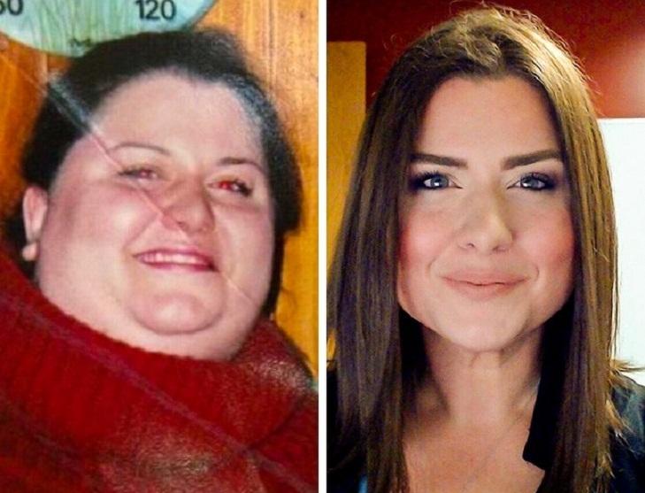 Сильно похудели щеки