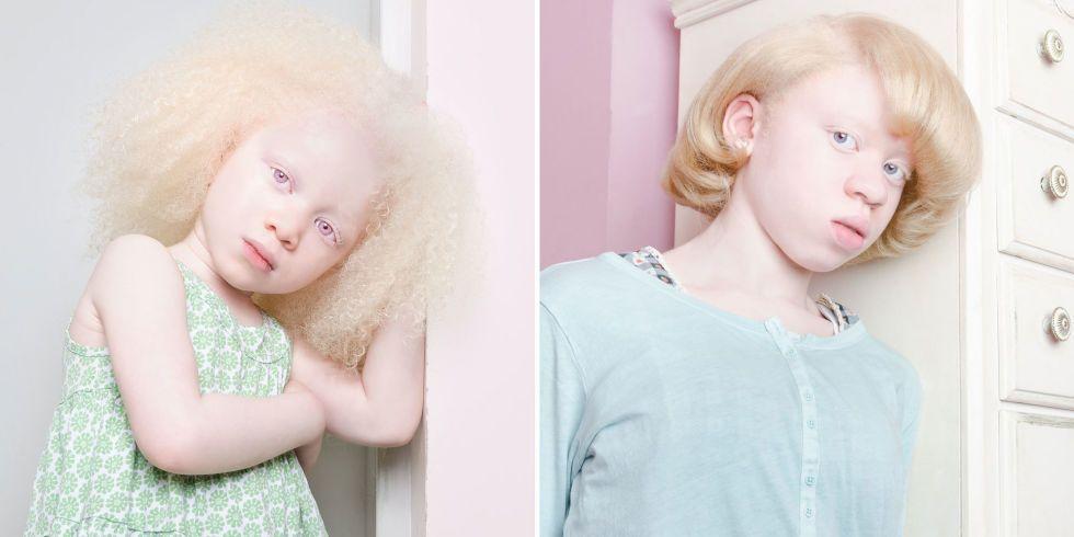 концу года как видят люди альбиносы фото досках, также других