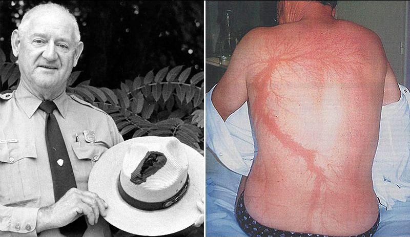 """Рой Салливан – """"человек-громоотвод"""": пережив 7 ударов молнией, умер он совершенно по другой причине"""