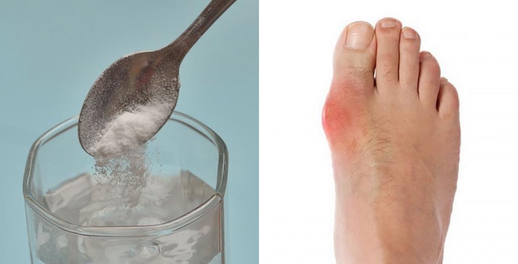 Помощь желудку: пить пищевую соду, разбавленную водой, полезно для здоровья