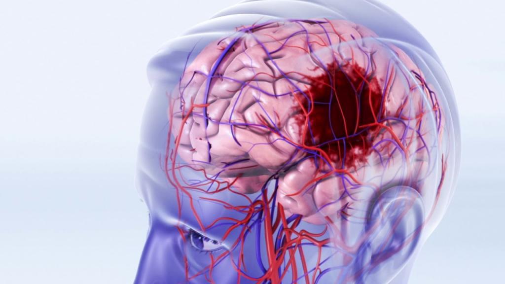 Головной мозг инсульт картинки