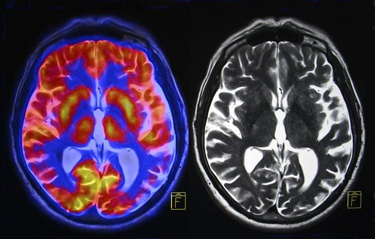 Когда зародились чтение и письмо? Подсказку дает нейронаука – объяснение ученых